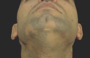 Выпадение волос у мужчин на бороде