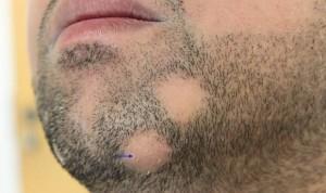 Очаговая алопеция у мужчин на бороде имеет 3 стадии