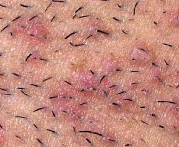вросшие волосы провоцируют образование высыпаний