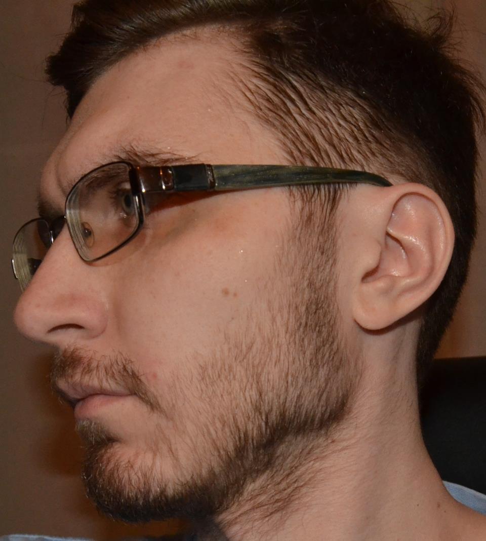 Не растёт борода что делать форум