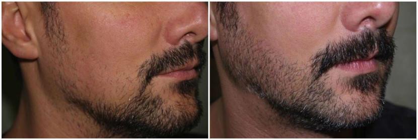 Как сделать чтобы борода росла ровно - Meduzaka.ru