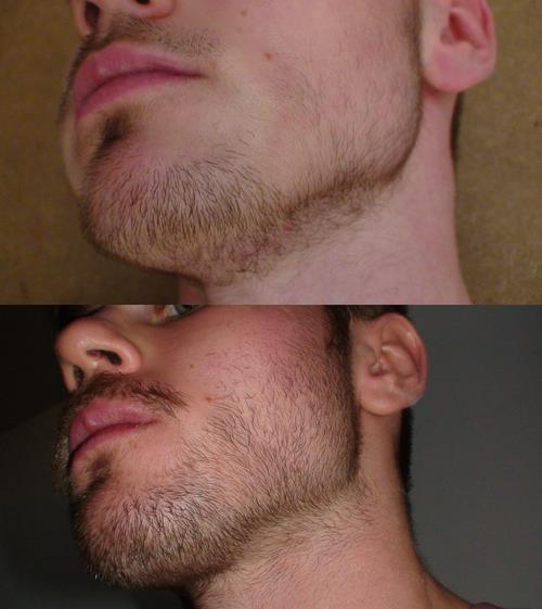 Как сделать чтобы росла черная борода - Биметалл Плюс