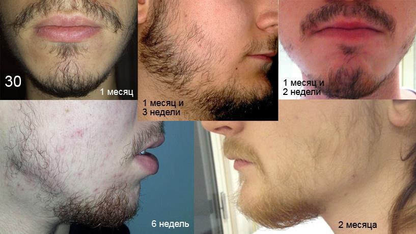Что сделать чтобы борода росла быстрее и гуще в домашних условиях - ФоксТел-Юг