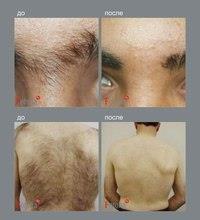 Уход после использования мужского крема