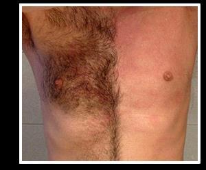 Популярные мужские кремы для депиляции интимных зон