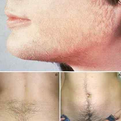 Примеры гипертрихоза