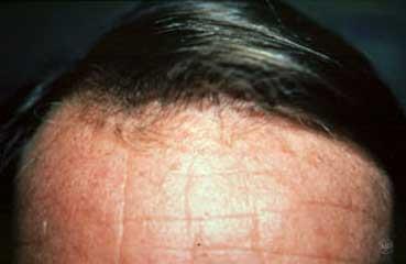 Голова после пересадки волос