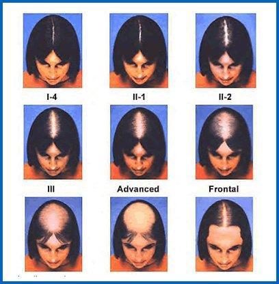 Выпадение волос у женьщин - облысение