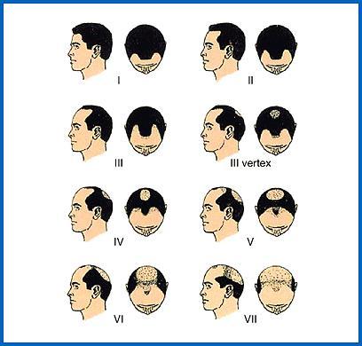 Выпадение волос у мужчин(облысение)