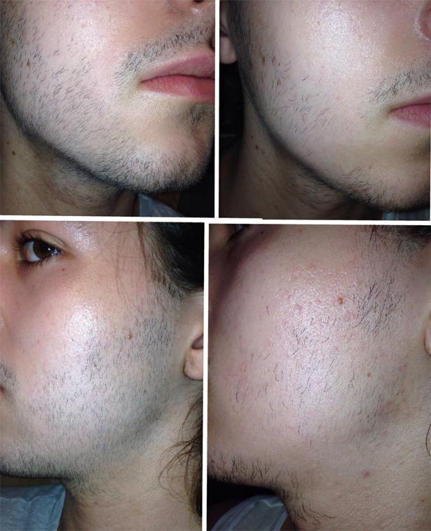 для бороды миноксидил