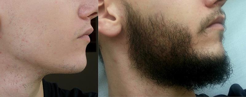 миноксидил 2 для бороды отзывы
