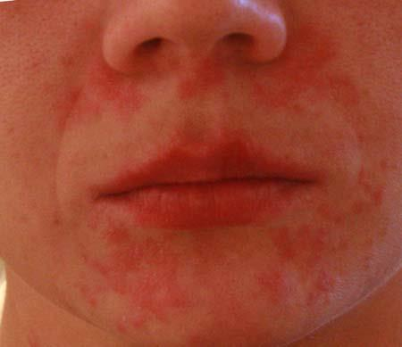 раздражение на лице в виде красных пятен