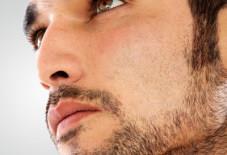 Пересадка волос в область бороды. Сделать густую бороду в Австрии