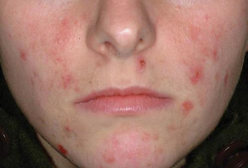 Демодекоз - проявления на лице