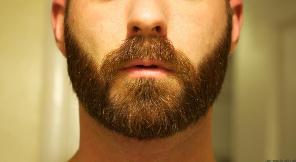 фото борода клочками