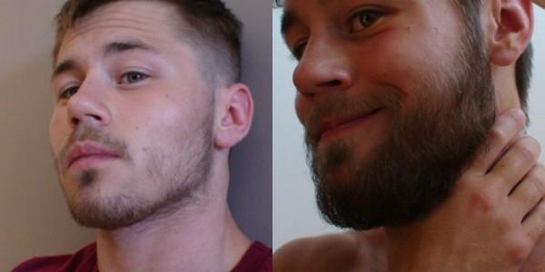 Борода ДО и ПОСЛЕ применения касторового масла