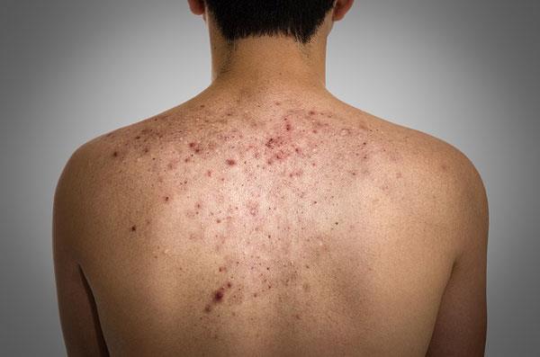 угревая сыпь на спине у подростка