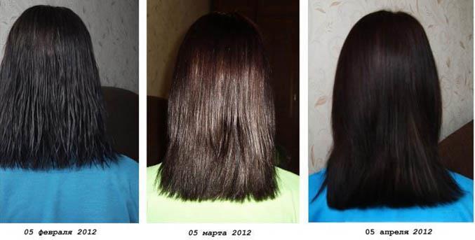 Как удалить волос народными средствами