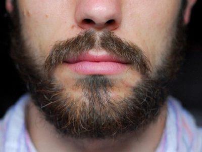 Симптомы облысения бороды