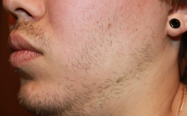 неравномерный рост щетины на щеках