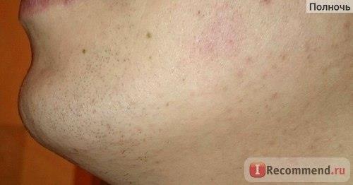 Фото после бритья