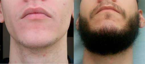 Борода этапы роста фото