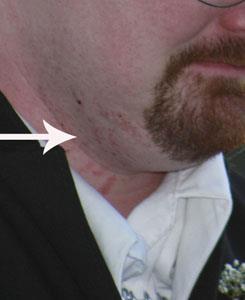 Раздражение при бритье