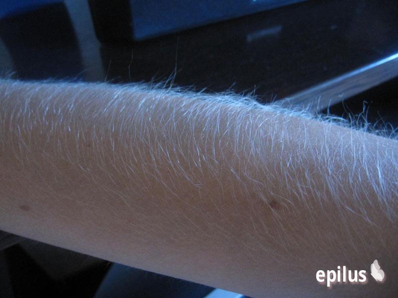 Какой длины должны быть волосы для шугаринга? 9-3