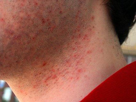 раздражение после бритья у мужчин