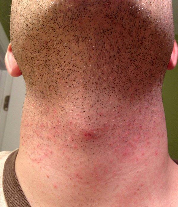 раздражение после бритья на шее