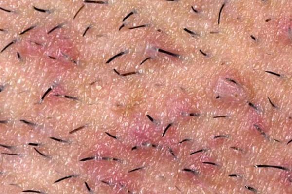 Фото – 3 Часто у мужчин воспаляются на лице волосяные фолликулы после бритья