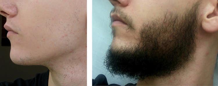репейное масло для бороды