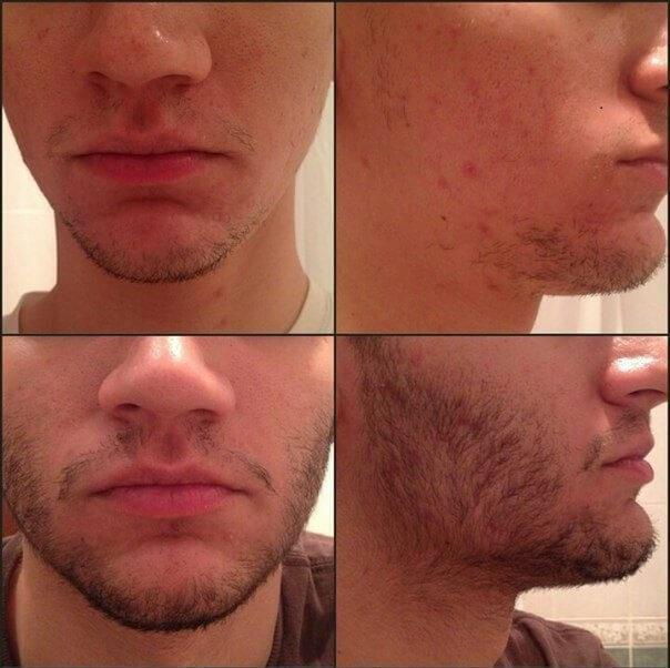 Результат применения Миноксидила на бороде