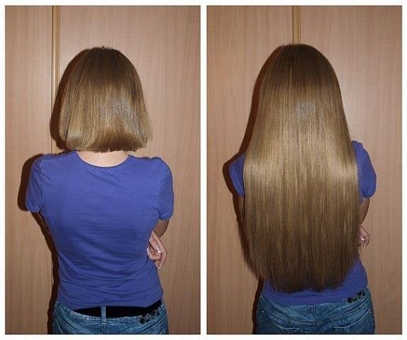 использования димексида для роста волос