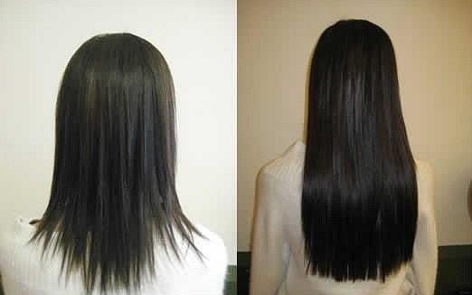 Фото до и после использования димексида для роста волос