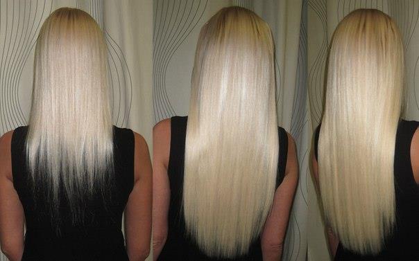 использования димексида для роста волос Фото до и после