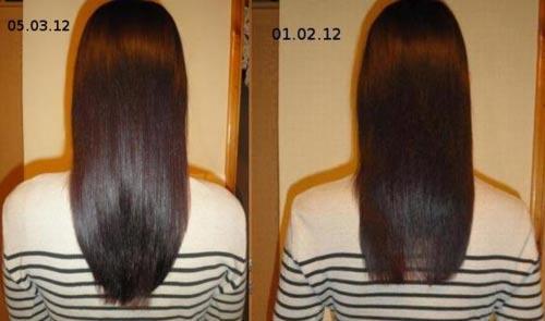 Как действует витамин б12 на волосы
