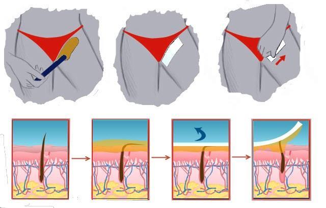 Удаление волос восковыми полосками