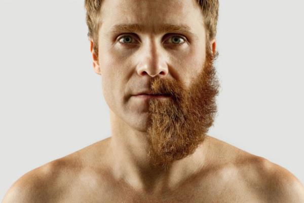Густая борода после использования средств для роста бороды