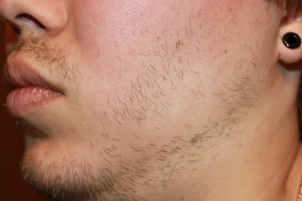 Не растет борода у парня 25 лет