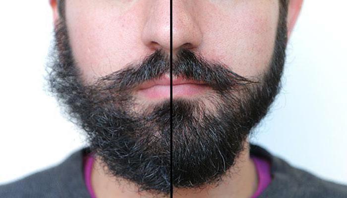 когда начинает расти борода на щеках