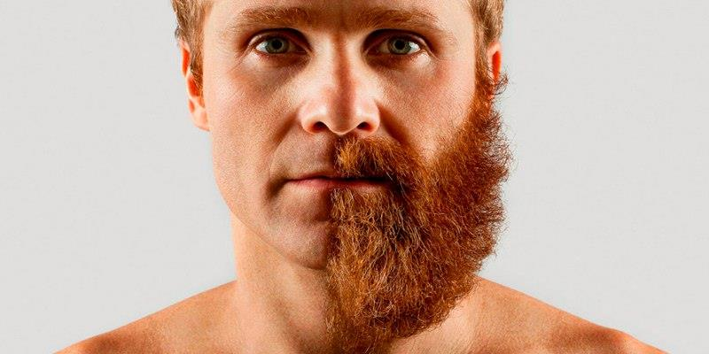 Пересадка волос на бороду.jpg